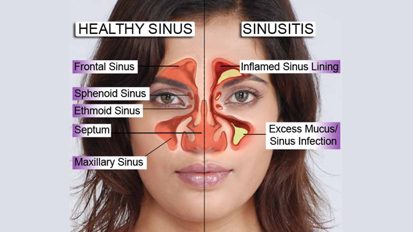 best ayurveda naturopathy panchkarma yoga acupuncture and acupressure treatment for sinus in delhi